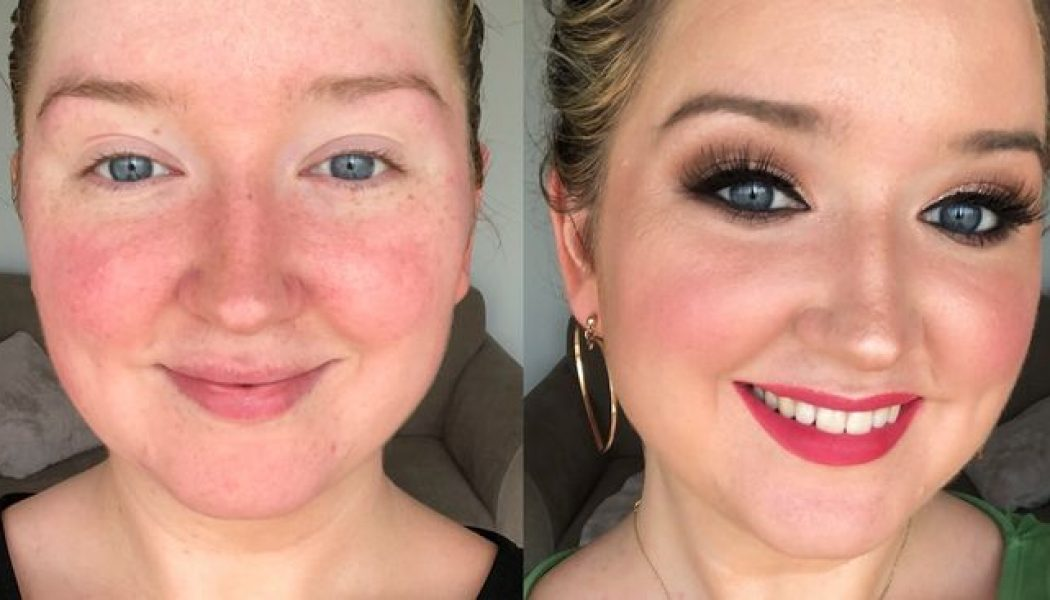 14 Redness-Reducing Products I Swear By Since Being Diagnosed With Rosacea