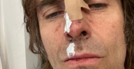 Liam Gallagher Says He Fell Out of a Helicopter